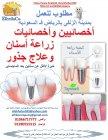 مطلوب اخصائي زراعة اسنان